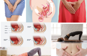 Pelvic Organ Prolapse- Causes, Symptoms and Treatment