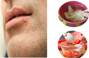 How To Get Rid Of Pimple On Lip Line