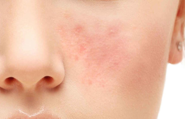 Rosacea -Symptoms, Causes, Treatment And Home Remedies