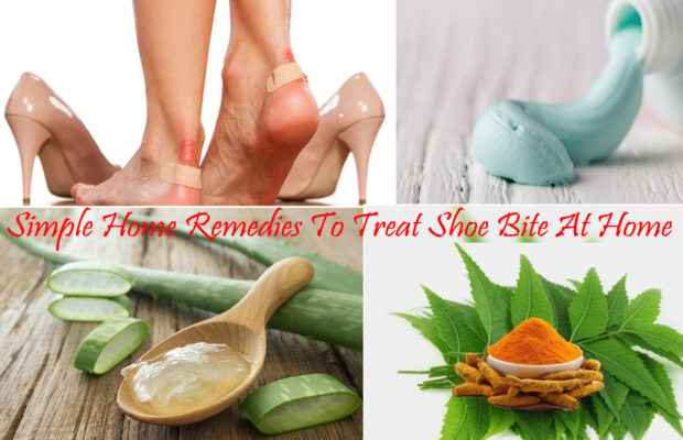 Simple Home Remedies To Treat Shoe Bite At Home