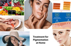 Top 5 Simple Method To Get Rid Of Pigmentation and Dark Spots Naturally