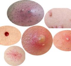 Skin Conditions Below Your Waist