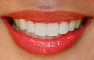 Sparkling smile
