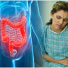 Ulcerative Colitis: A complete Guide to Support you with the Disease