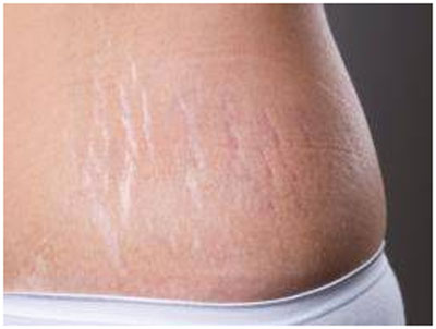 Heal's stretch marks