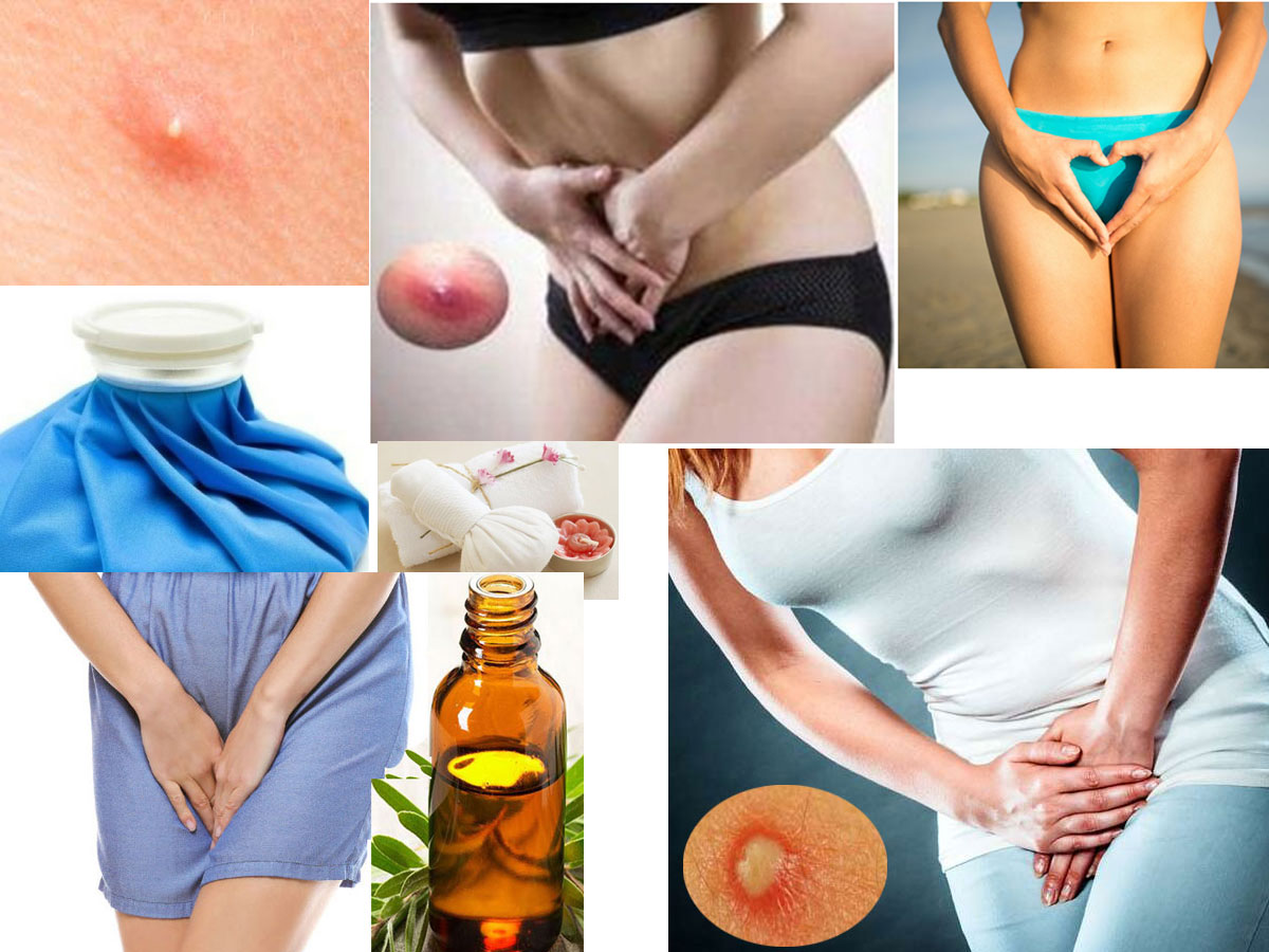 Are You Suffer From Vaginal Boil? Get The Fastest Way To Heal Boil Outbreaks