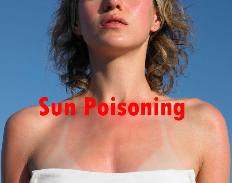 Prevention for Sun Poisoning