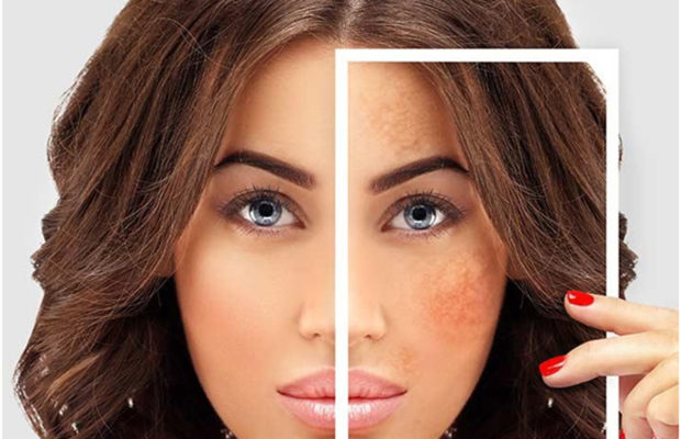 How to Get Rid Sunspots (Hyper Pigmentation)