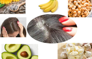 Super Foods That Help You Combat Dandruff