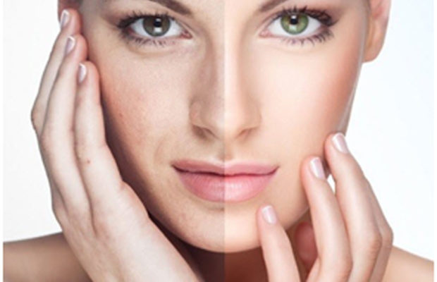 Natural Masks To Treat Dark And Tanned Skin