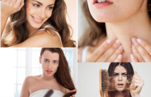 Thyroid And Hair Loss- How To Reverse Hair Loss Due To Thyroid Disorders