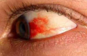 Treat Burst Blood Vessel in the Eye