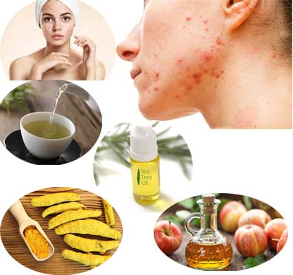Treat Hormonal acne in Females with Natural Home Remedies