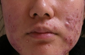Treat Severe Acne