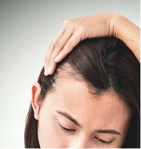 Hormone In PCOS Related Hair Loss