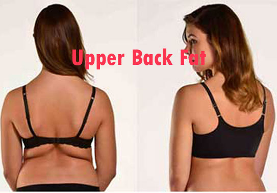 How To Get Toned Upper Back? How To Lose Upper Back Fat Fast
