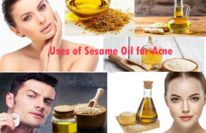 Uses of Sesame Oil for Acne