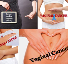 Vaginal Cancer: Symptoms, Causes and Treatment