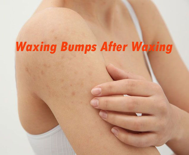 Waxing Bumps After Waxing