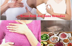 What Are Breast Boils And Home Remedies To Treat Breast Boils