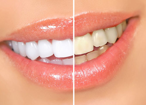 Teeth Whitener with Banana Peels