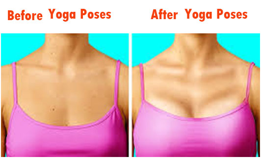 Before Yoga Poses & After Yoga Poses breast